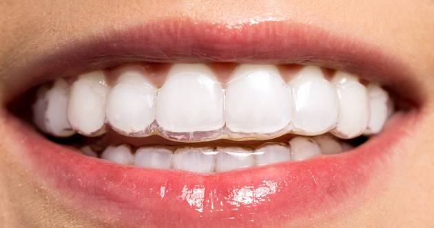 Чем отличается стоматолог ортопед от стоматолога ортодонта. разделение задач врачей-стоматологов