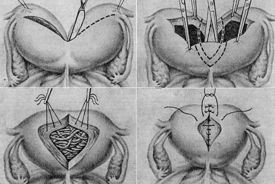 Двурогая матка — можно ли забеременеть?
