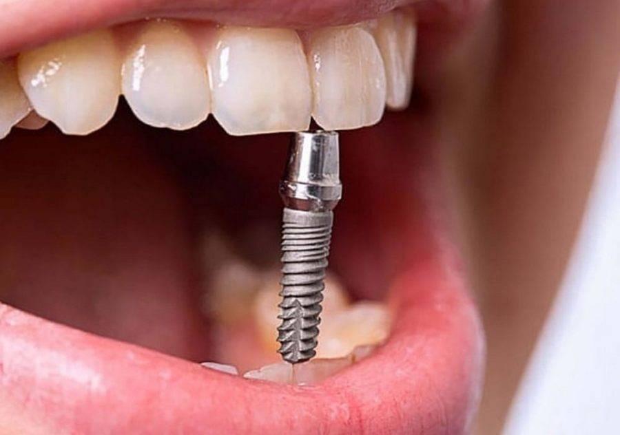 Как приживаются зубные импланты и как избежать их отторжения - смотреть видео