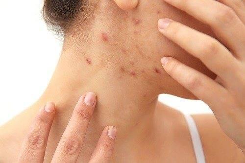 Прыщи на шее у женщин – причины и лечение