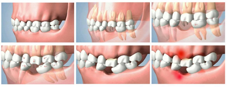 Осложнения при применении местной анестезии: онемение языка и губ после удаления зуба мудрости, парестезия, гематома