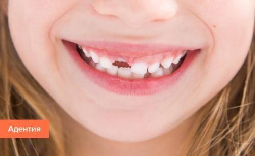 Как лечить болезни полости рта у взрослых