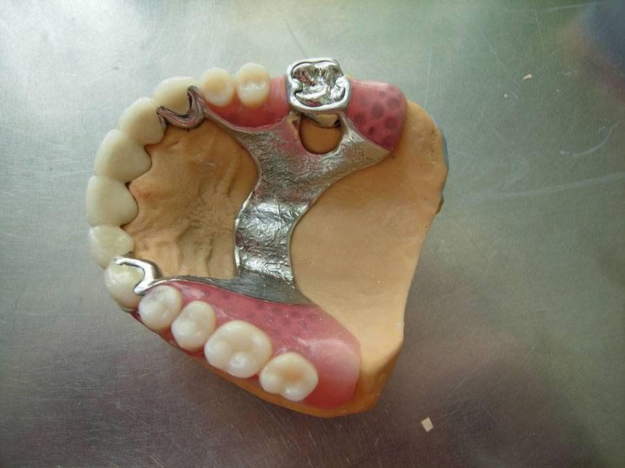 Классификация съемных зубных протезов 2020 года