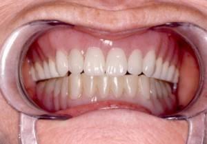 Отзывы о силиконовых зубных протезах