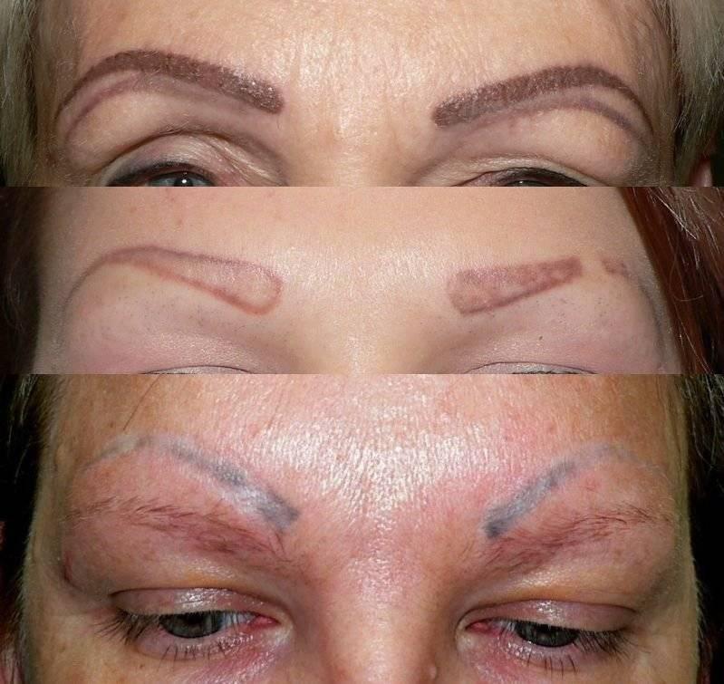 Татуаж бровей — причины и возможные последствия популярной косметической процедуры