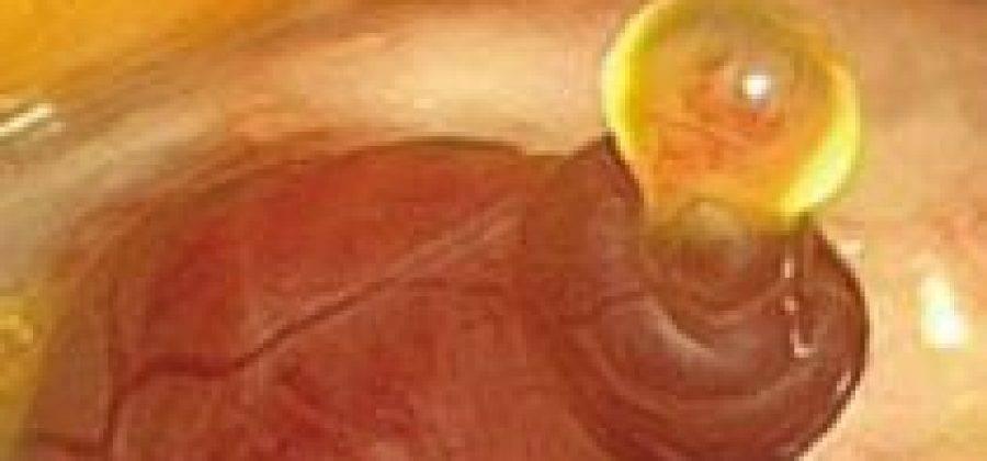 Выделения при кисте желтого тела