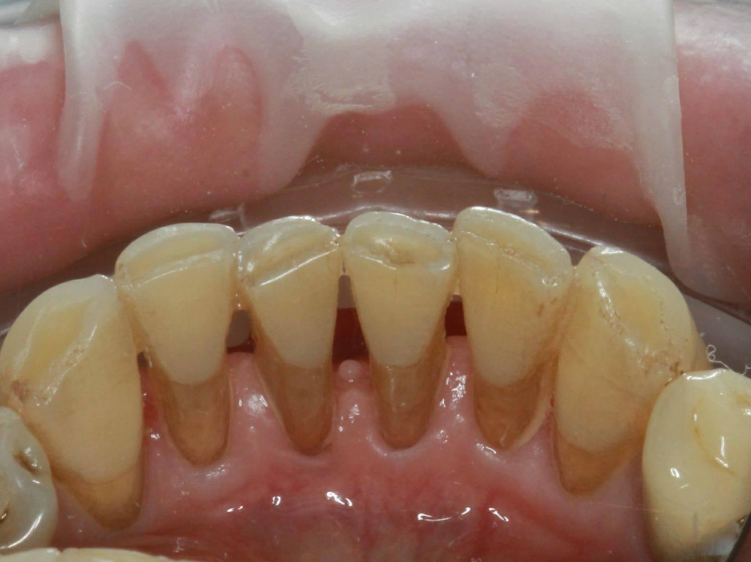 Шинирование подвижных зубов: особенности процедуры, показания и противопоказания