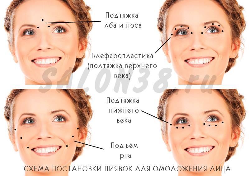 Пиявки в косметологии * подтяжка лица, отзывы, гирудопластика, омоложение кожи, фото как ставить