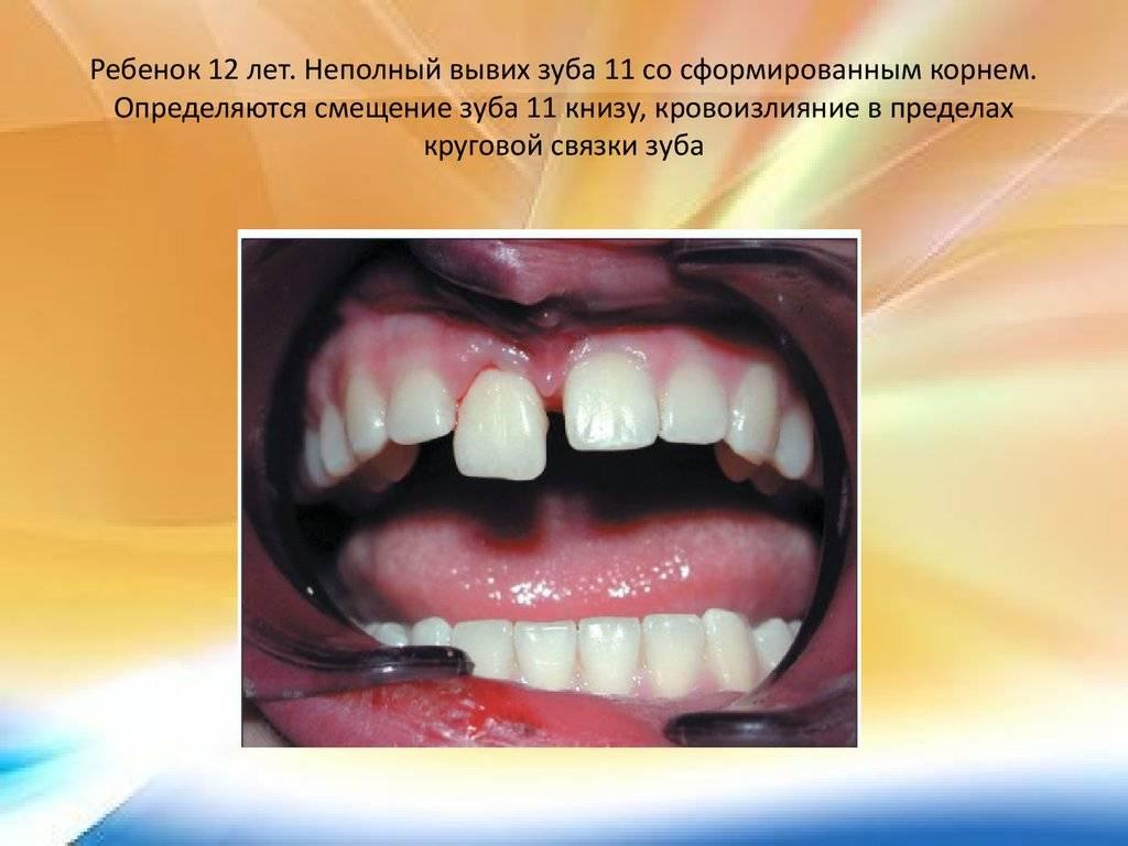 Сколько и как лечат полный вывих молочных или коренных зубов: этапы, особенности, фото