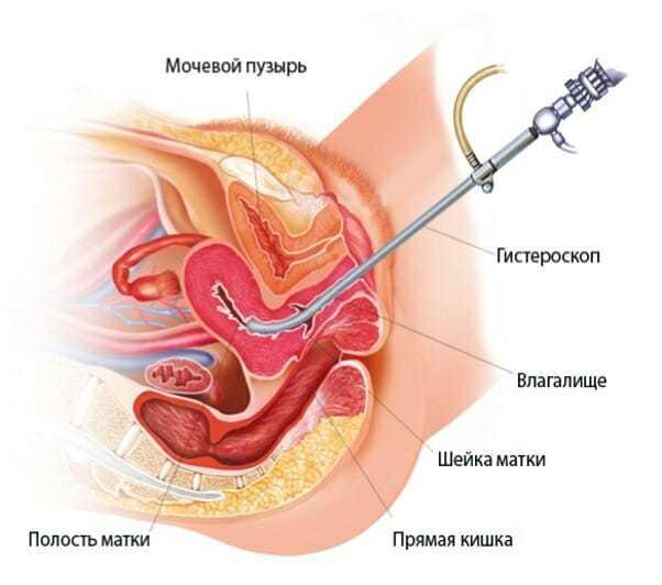 Эндометрит и беременность: совместное протекание