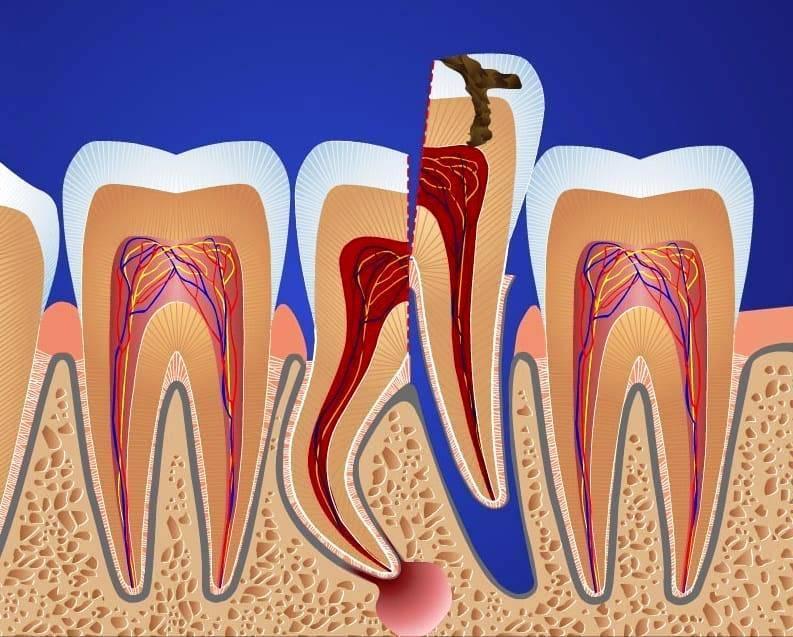 Где удалять зубы проще и безопаснее – на верхней или нижней челюсти? рассматриваем особенности процедуры