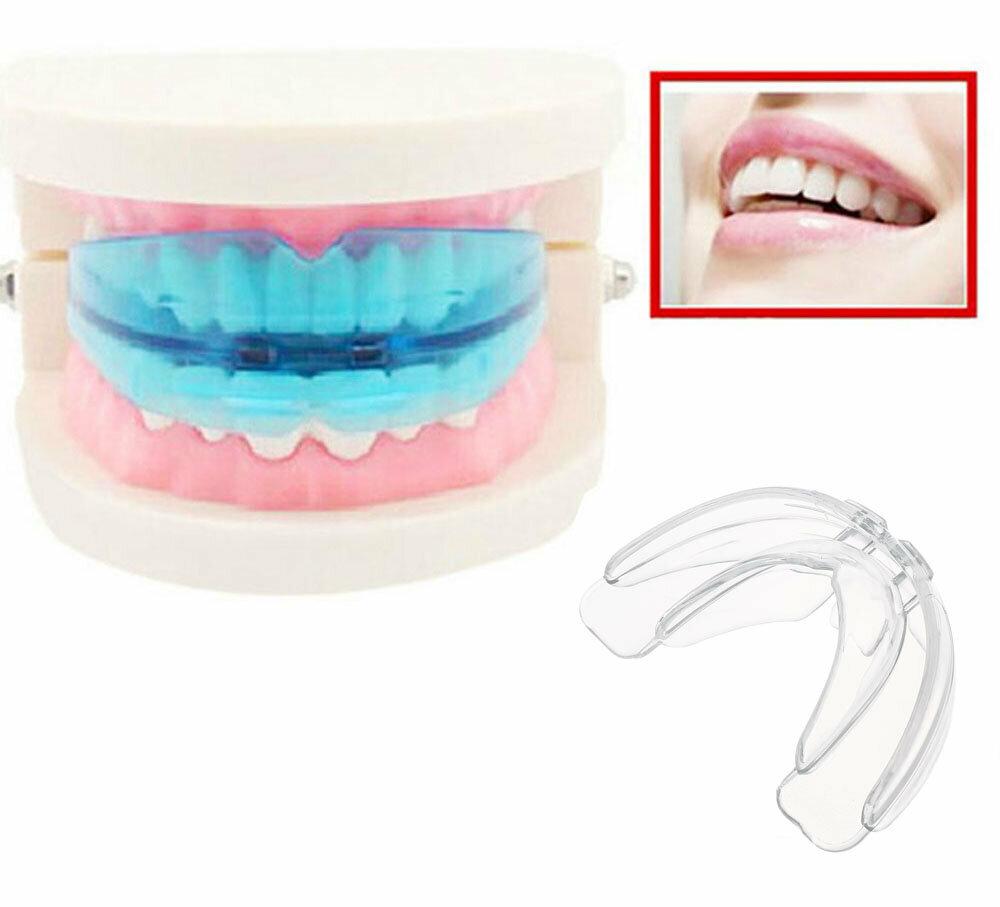 Капы для исправления прикуса: принцип действия, разновидности, сроки лечения и выравнивания зубов