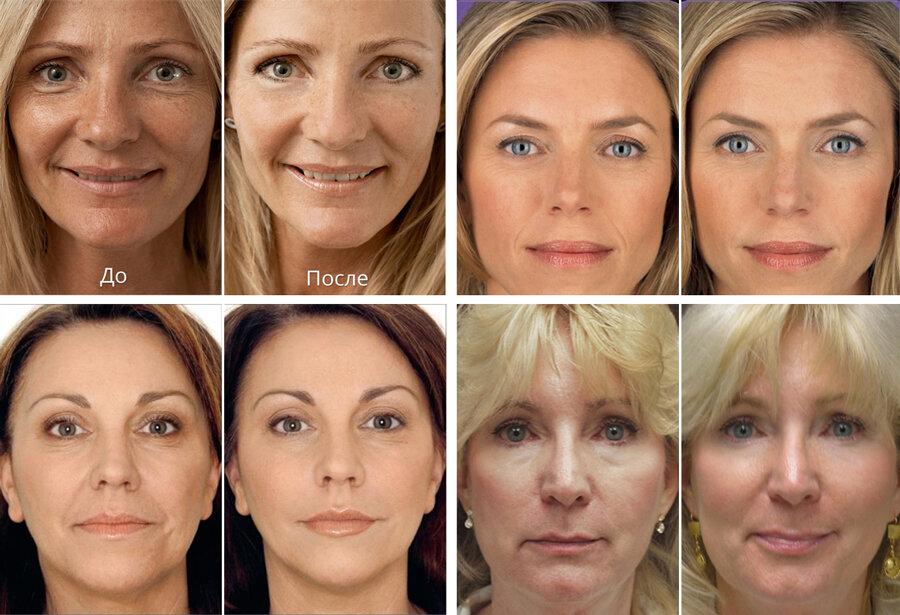"""Биоревитализация препаратом """"гиалуаль"""": отзывы косметологов, особенности применения и эффективность"""