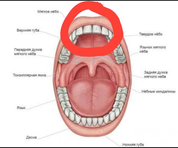 Причины воспаления нёба, способы лечения и профилактика