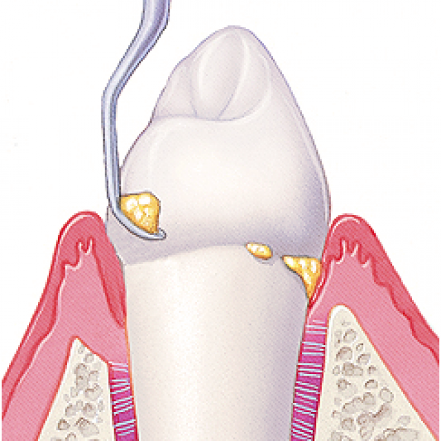Зубной камень: как быстро избавиться от него в домашних условиях, какие народные средства помогут его удалить?
