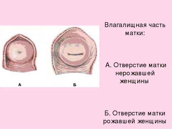 Сокращение матки после родов: нормы и отклонения, средства и меры