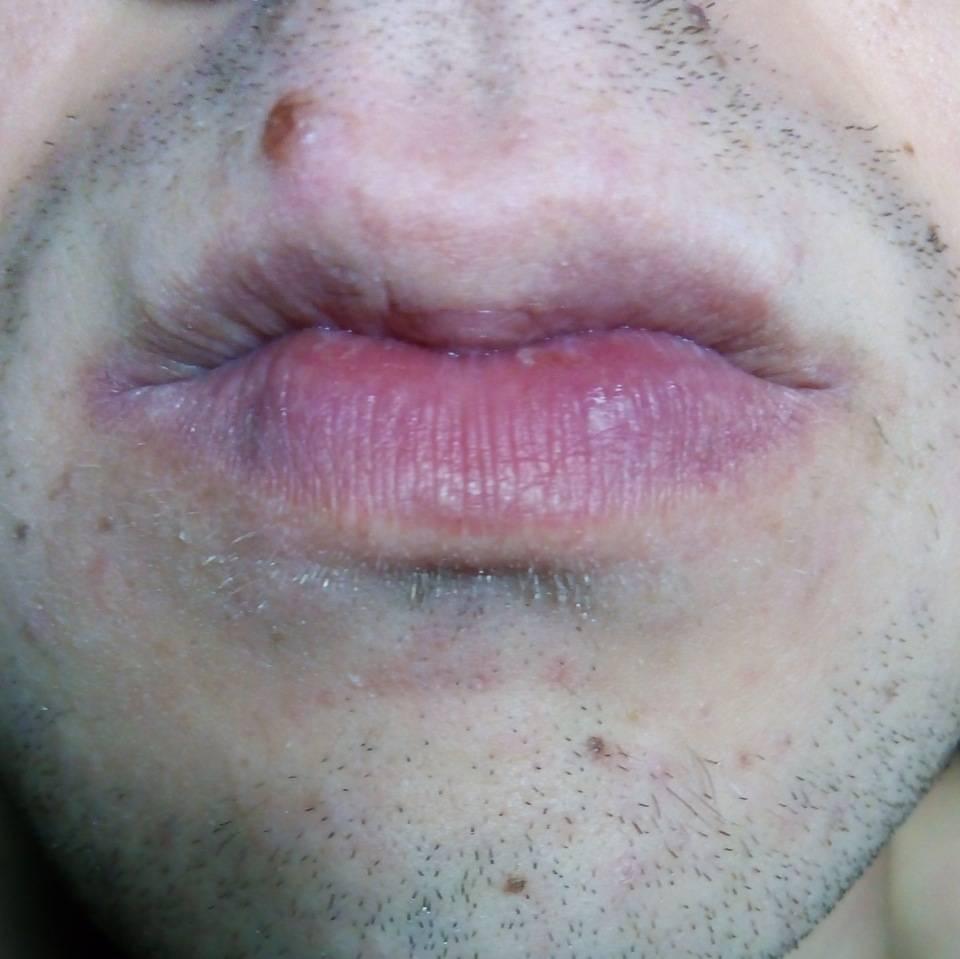 Почему появляются и как убрать черные точки с губ?