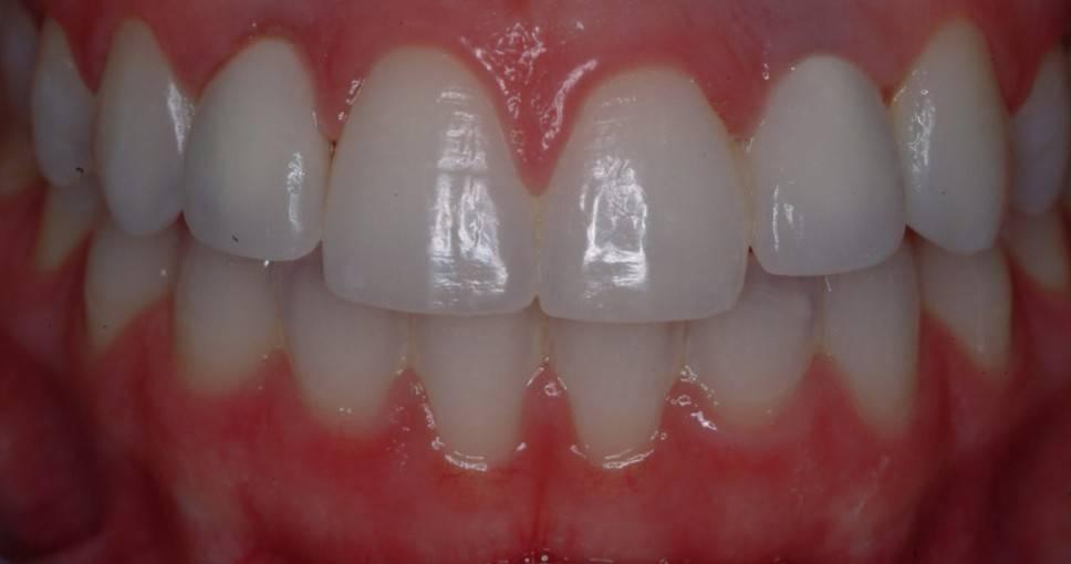 Как понять, что у вас аллергия на зубную коронку, какие симптомы, методы диагностики и лечения?