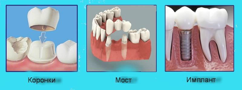 Стоматолог-хирург, ортопед и ортодонт – в чем отличие