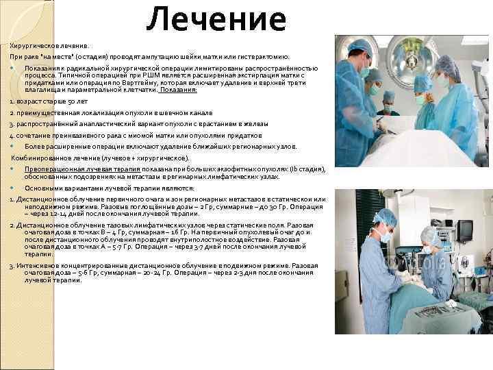 Эффективность лучевой терапии при раке шейки матки и побочные эффекты