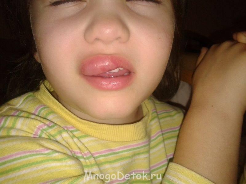 Почему распухла губа у ребенка и что предпринять