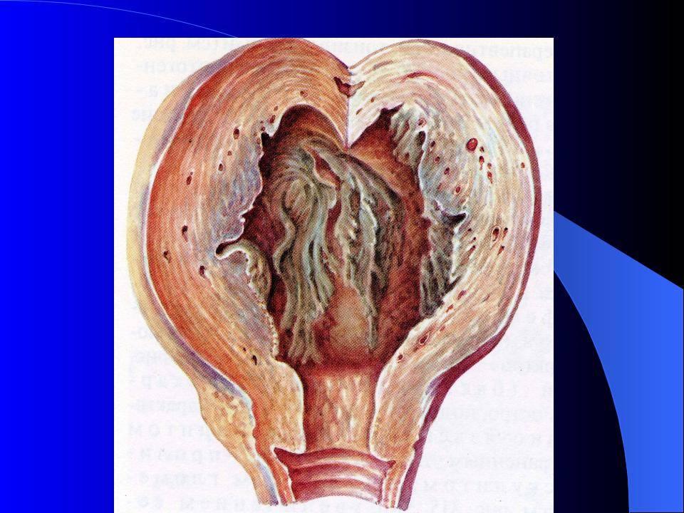 Послеродовой эндометрит
