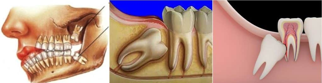 Что делать, если после удаления зуба в десне торчит кость и видна надкостница в лунке?