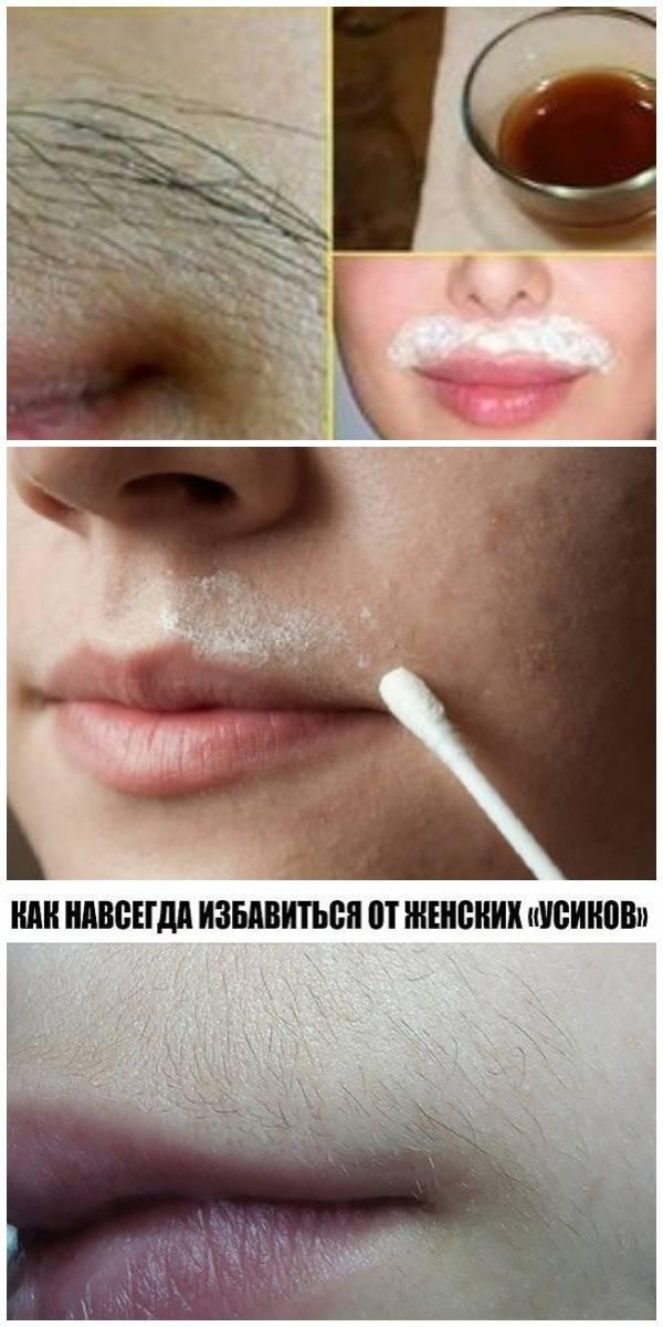 Как убрать усики над губой самостоятельно