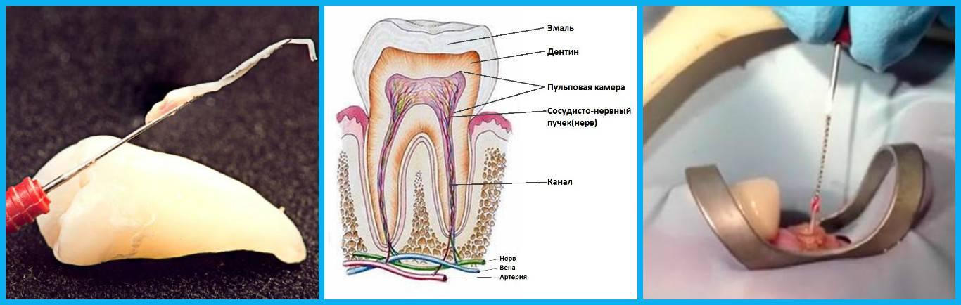 Сколько живет зуб без нерва после удаления и что с ним происходит