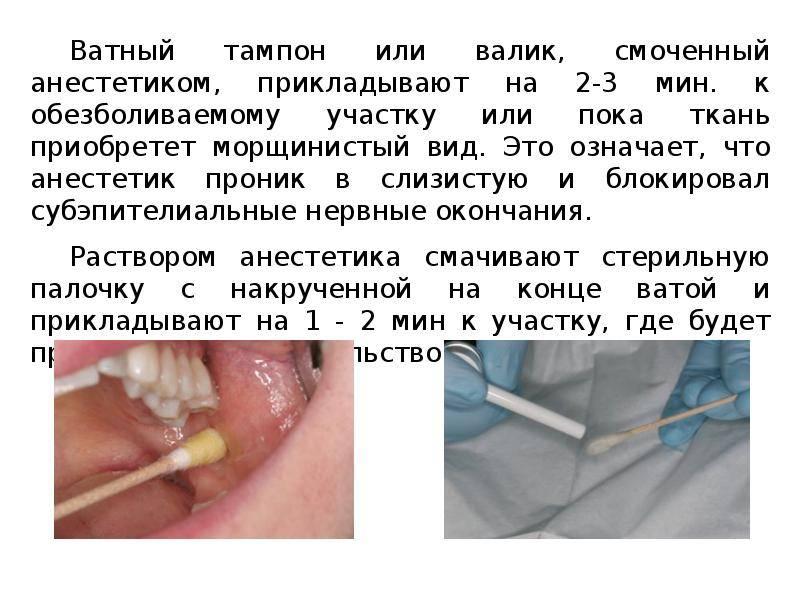 Как долго действует анестезия при лечении зубов