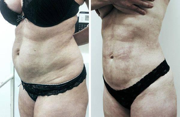 Как убрать висцеральный жир? стратегия сжигания внутреннего жира