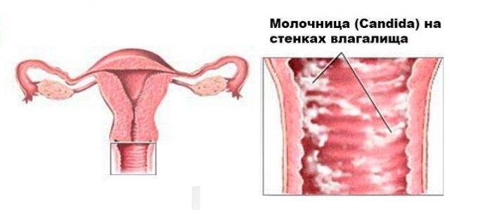 Зуд и жжение во влагалище без выделений, запаха и с ними. что это, причины и лечение