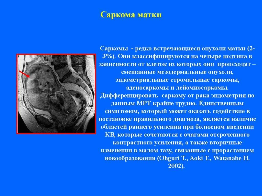 Саркома. причины, симптомы, признаки, диагностика и лечение патологии
