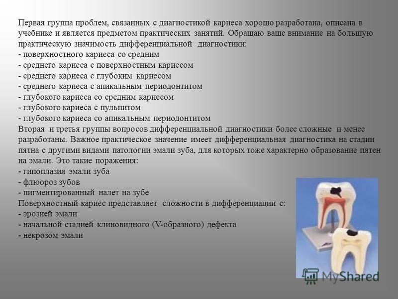 Диагностика и лечение компенсированной формы кариеса