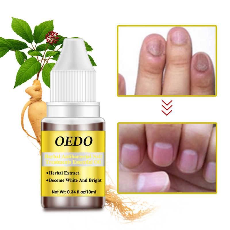 Варианты использования масла чайного дерева против грибка ногтей