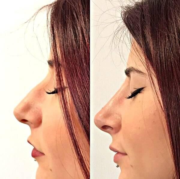 Совершенствуем свое лицо: коррекция носа филлерами и особенности этой процедуры