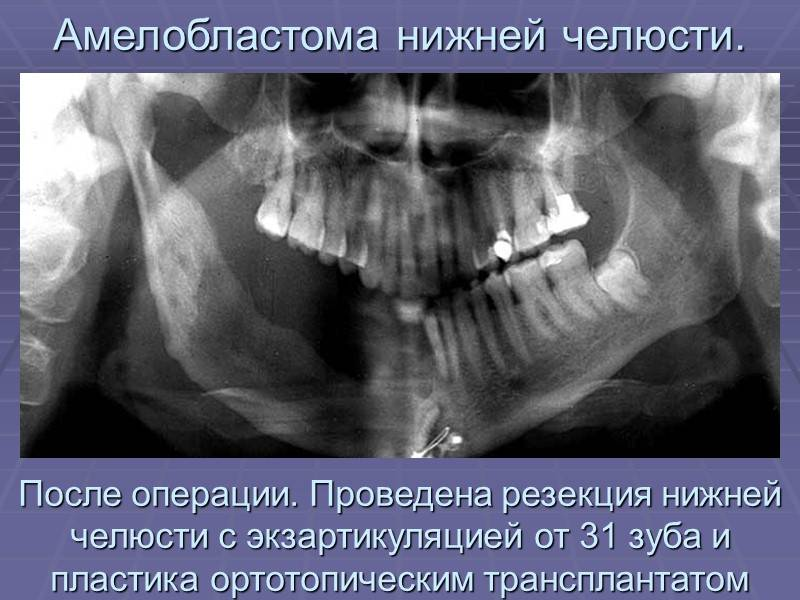 Амелобластома нижней челюсти – виды заболевания с фото и способы лечения