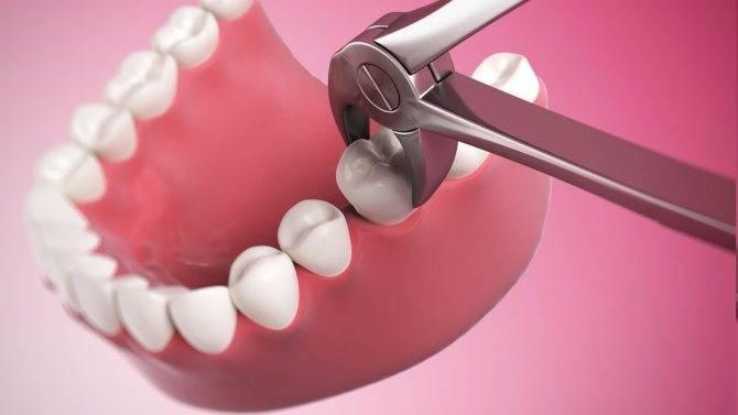 Можно ли пить алкоголь после анестезии у стоматолога: через какое время допустимо употребление спиртного