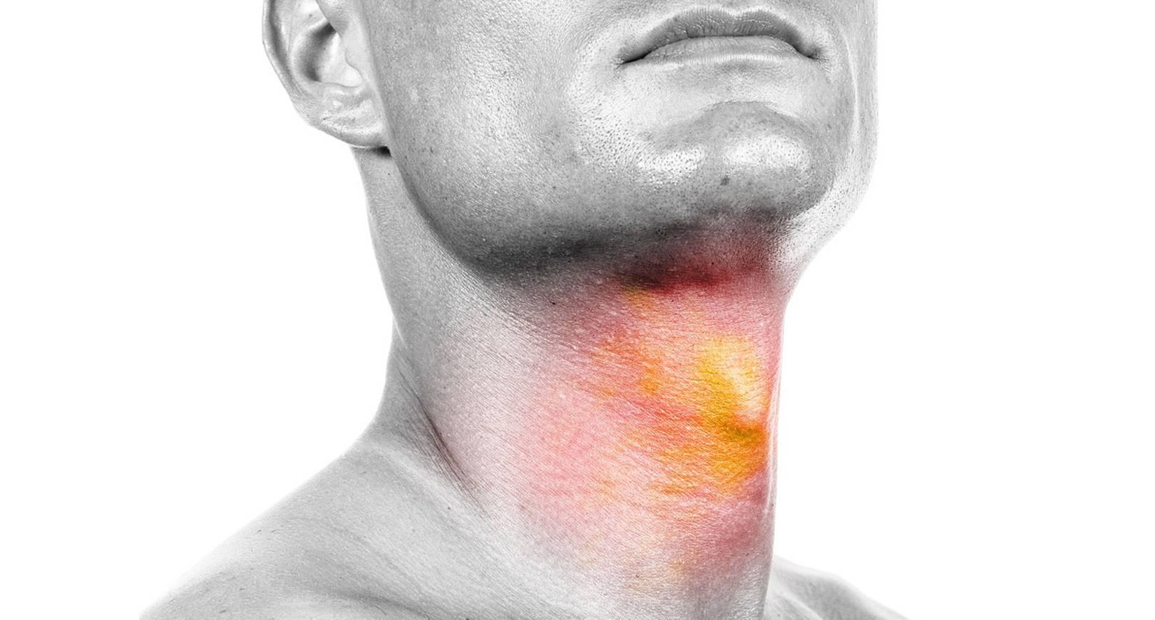 Ожог неба во рту – правильное лечение, как снять боль?