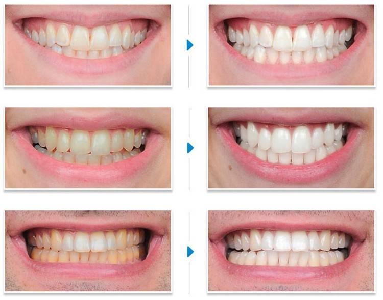 Почему после отбеливания болят зубы
