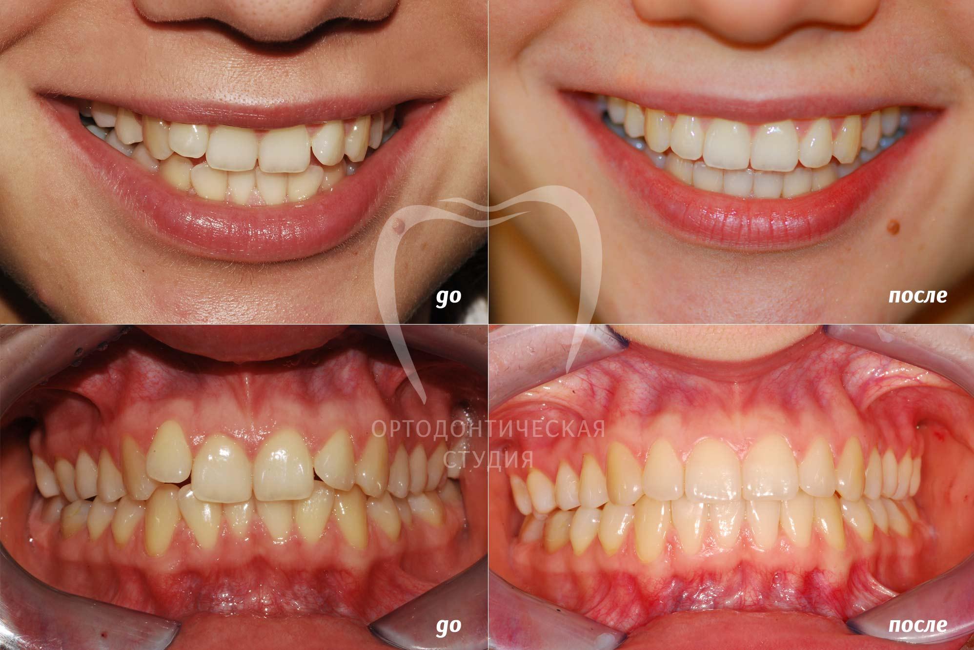 Иннервация челюсти