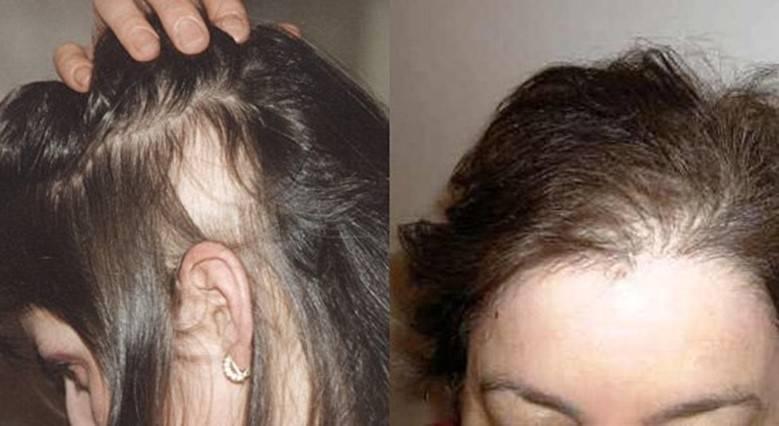 Почему выпадают волосы во время климакса: причины, лечение