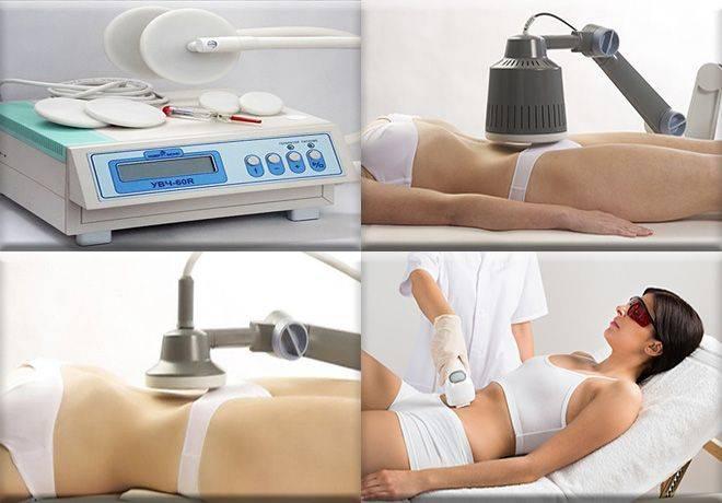Физиотерапия при эндометриозе: виды, эффективность, противопоказания