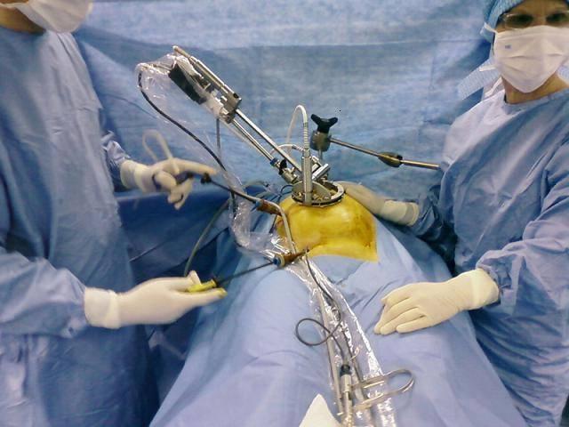 Диета после лапароскопии кисты яичника