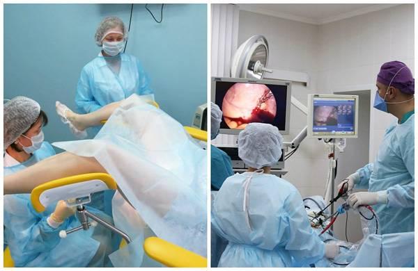 Операция по удалению миомы матки: показания, виды, проведение, реабилитация