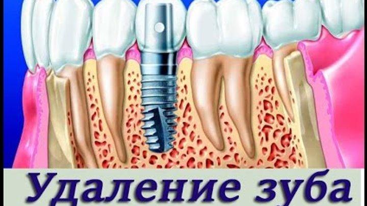 Турунда в лунке после удаления зуба сколько дней