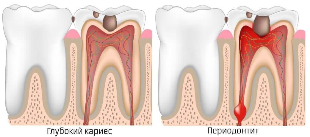 Почему болит верхняя челюсть — основные причины