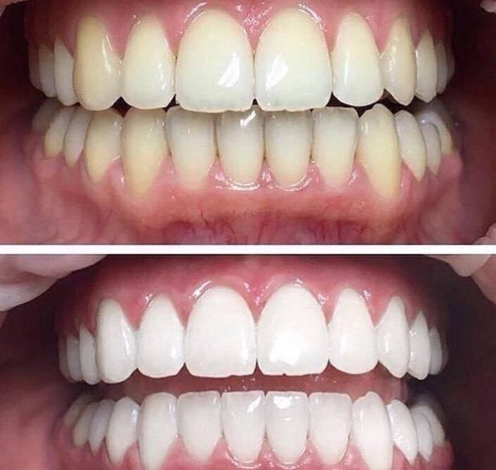 Чем отбеливают зубы в америке