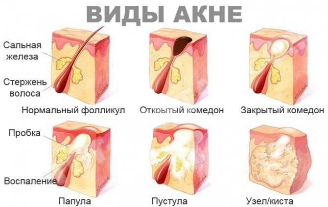 Прыщи на лбу: причины появления, основные виды, медикаментозное и косметологическое лечение (125 фото и видео)