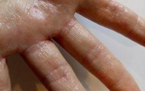 Чем лечить мокнущую экзему на ногах?